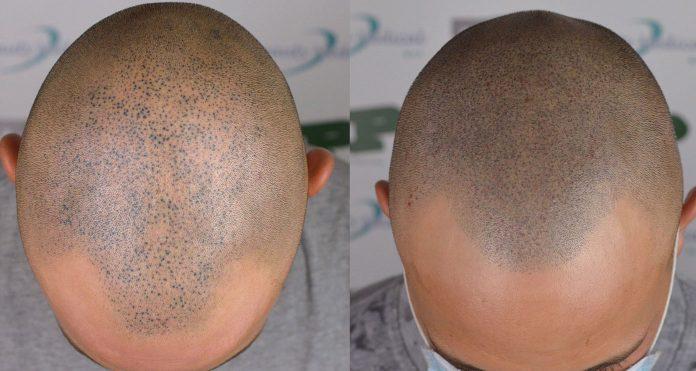 tricopigmentazione danni