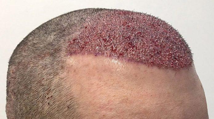 gonfione trapianto capelli