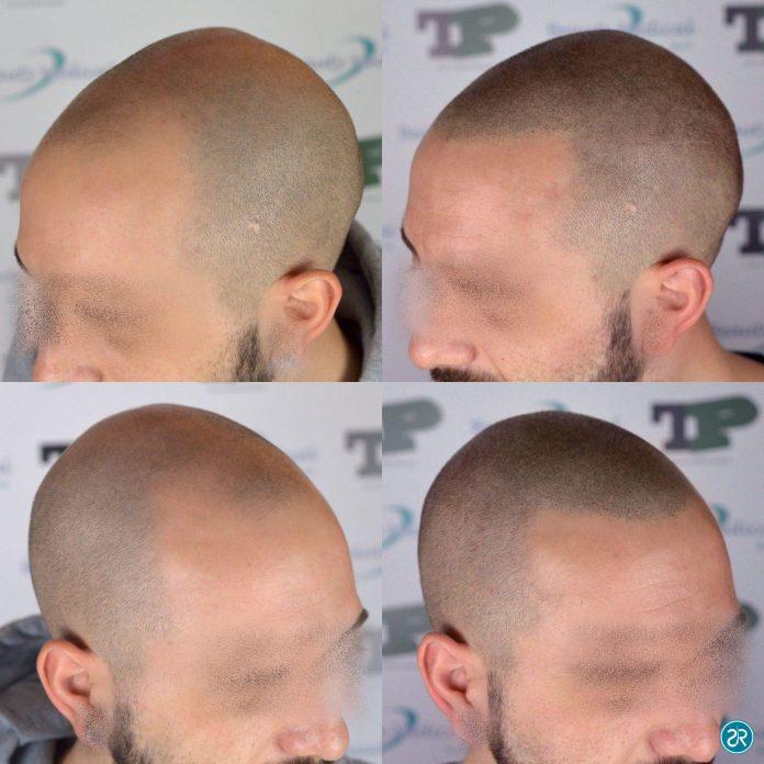 immagini di tricopigmentazione